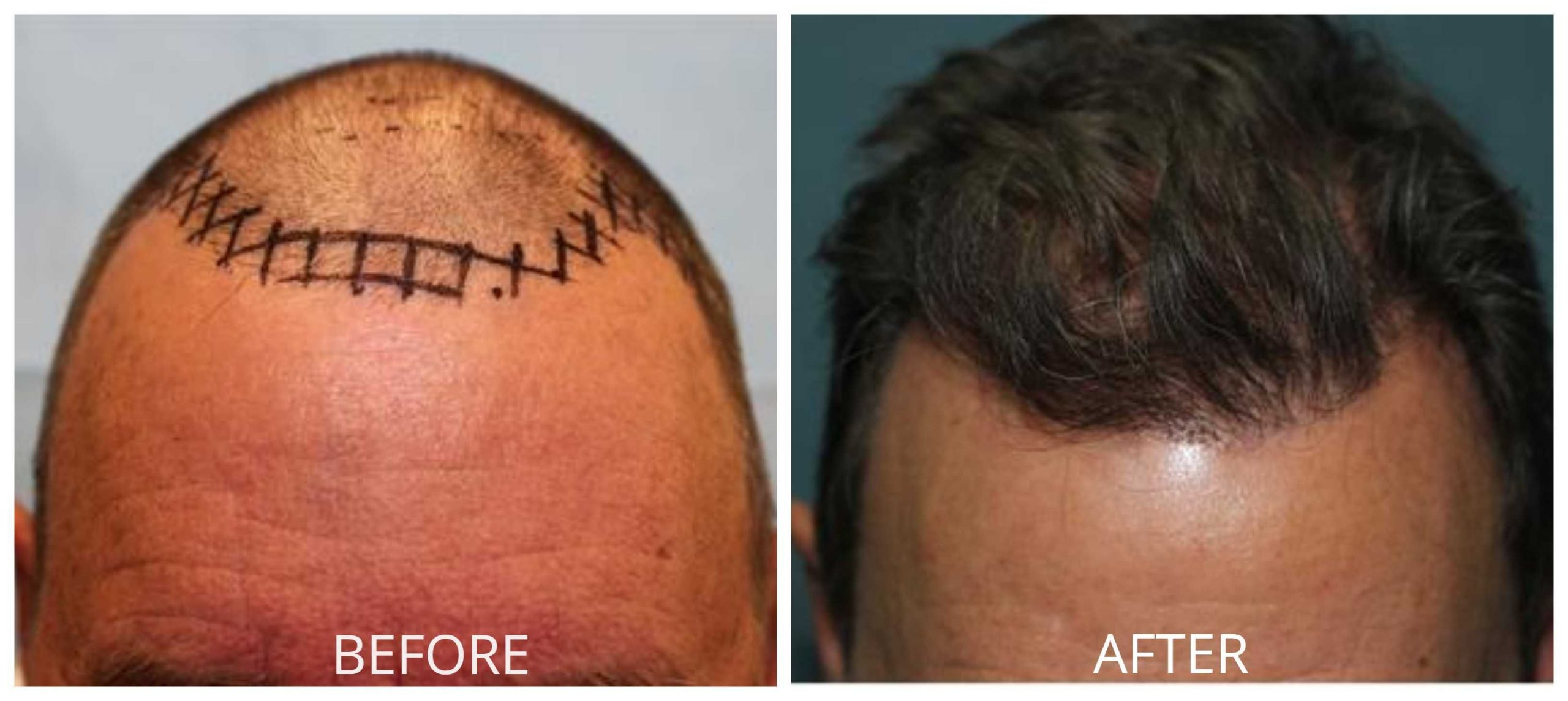 Know About The Orange County Hair Restoration